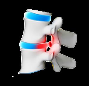Риск Остеопороза